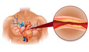 kako znižati holesterol